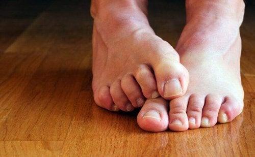 Schimmelnagels voeten