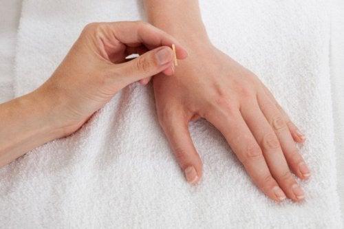 Hoe werkt acupunctuur