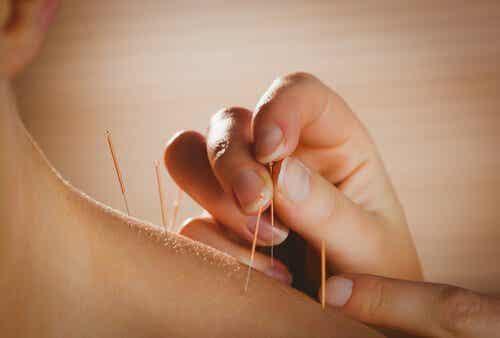Wat zijn de gezondheidsvoordelen van acupunctuur?