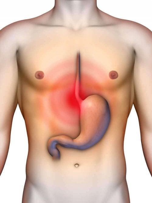 4 natuurlijke maagzuurremmers om reflux te behandelen