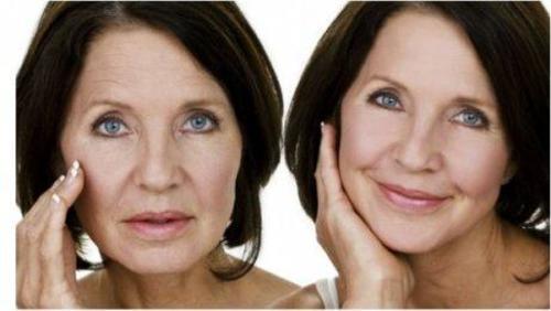 Voor en na foto's van vrouw met stevigere huid