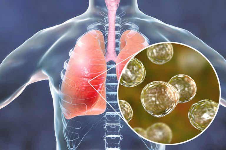 5 remedies voor symptomen van blastomycose