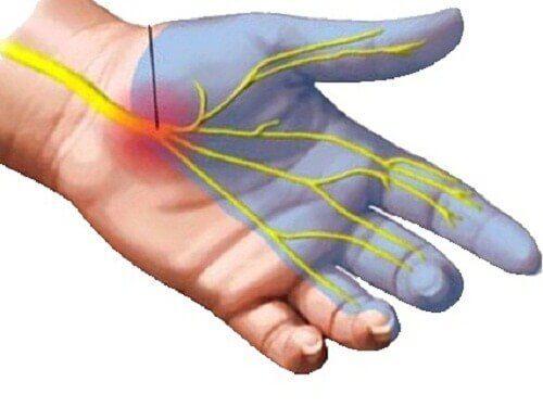 Oorzaken van pijn bij carpaletunnelsyndroom