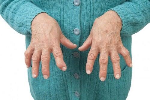 Reumatische artritis verlichten met geneeskrachtige remedies