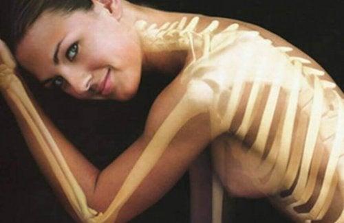 Gezondheid van je botten