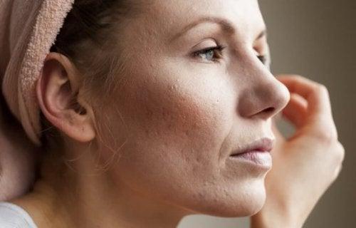 8 tips voor het verkleinen van vergrote poriën