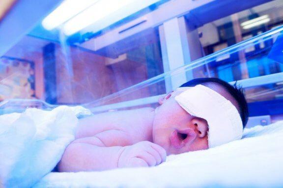 Lichttherapie tegen geelzucht bij baby's