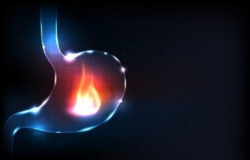 wat is brandend maagzuur