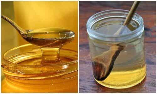 Keelpijn genezen met warm water en honing