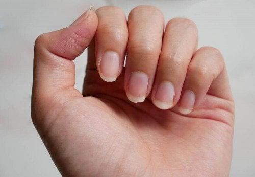 Negen remedies tegen breekbare nagels
