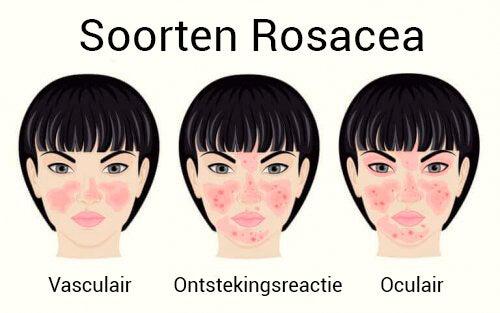 rosacea kan niet genezen