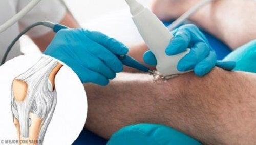 De voordelen van een artroscopie van de knie