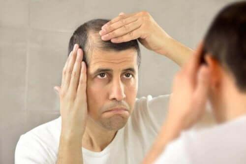 Man met last van alopecia