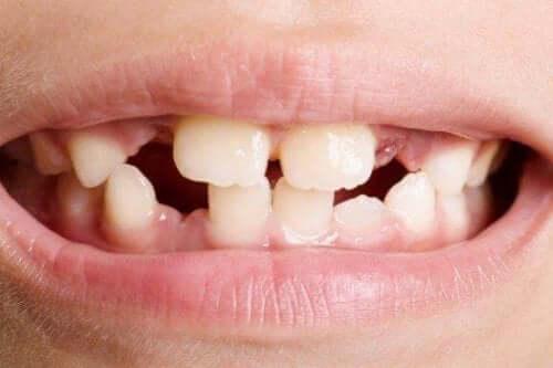 Tandagenesie: de soorten en behandelingen