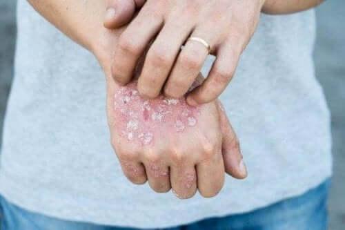 Vijf behandelingen met kruiden tegen psoriasis