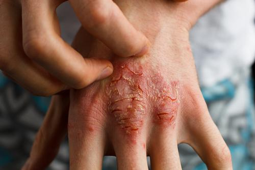 Wat is artritis psoriatica