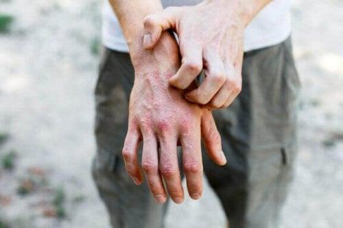 6 huismiddeltjes om contactdermatitis te behandelen