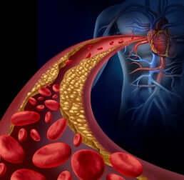 Een dieetplan om je triglyceridengehalte te verlagen