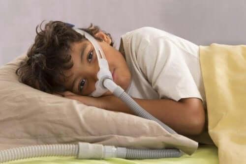 Obstructieve slaapapneu bij kinderen