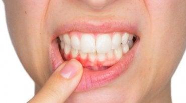 Tandabcessen en hoe ze te behandelen