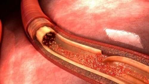 Wat is een aortadissectie en wat is de oorzaak?