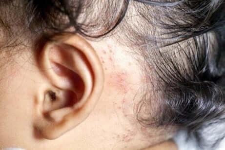 Behandeling van psoriasis bij kinderen