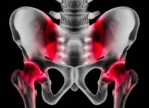 Atletische pubalgie: oorzaken, symptomen en behandeling