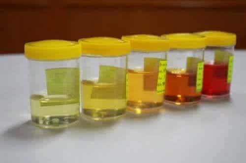 Leer alles over afwijkingen in de urine