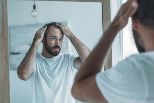 Man met alopecia