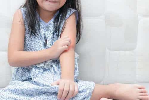 Omgaan met psoriasis bij kinderen