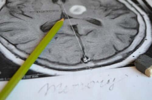 De symptomen en preventie van amnesie