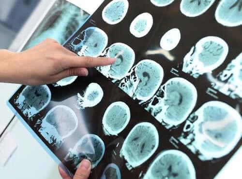 Ernstige neurocognitieve stoornis (dementie)