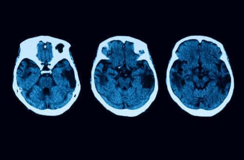 Diagnose van posterieure corticale atrofie