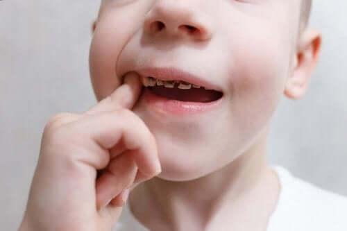 Kind met gaatjes in de tanden