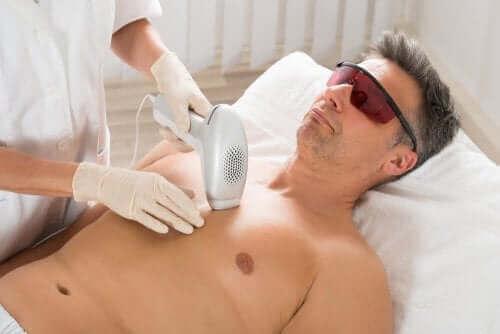 Een man krijgt laserontharing toegepast op de borst