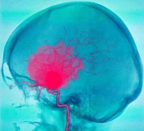 Symptomen van cerebrale parese
