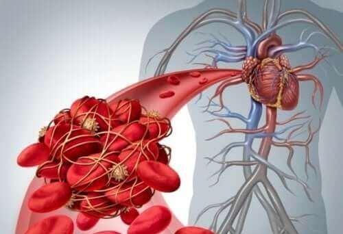 Wat veroorzaakt diepveneuze trombose
