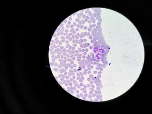 Agranulocytose: symptomen en behandelingen