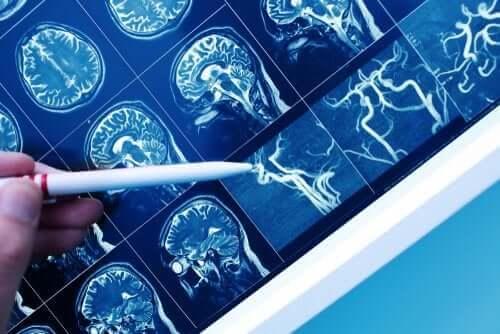 Wat is vasculaire dementie?