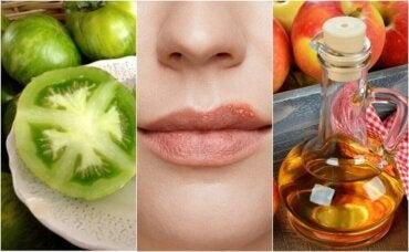 5 natuurlijke remedies om een koortslip te bestrijden