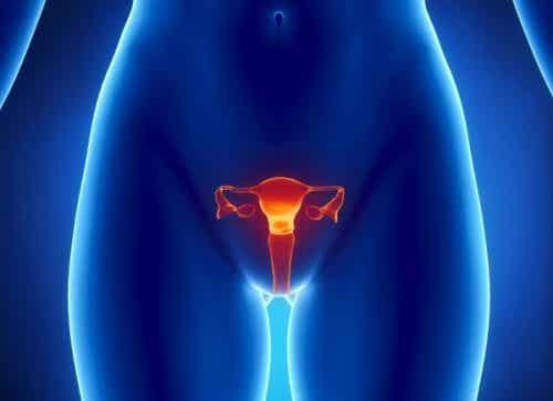5 secundaire gevolgen van eierstokkanker