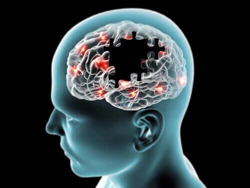 De impulsen van de hersenen