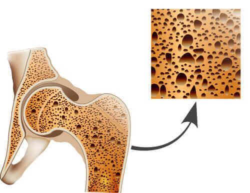 Een afbeelding van botten