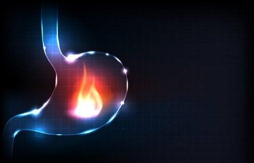 De belangrijkste oorzaken van brandend maagzuur