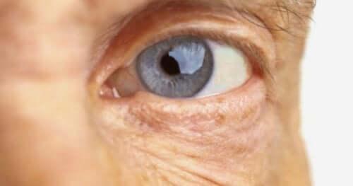 Een afbeelding van een oog