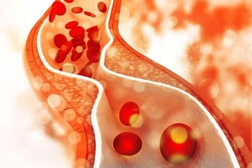 Het verlaagt het cholesterolgehalte in het bloed