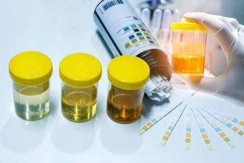 Strips om urine te testen