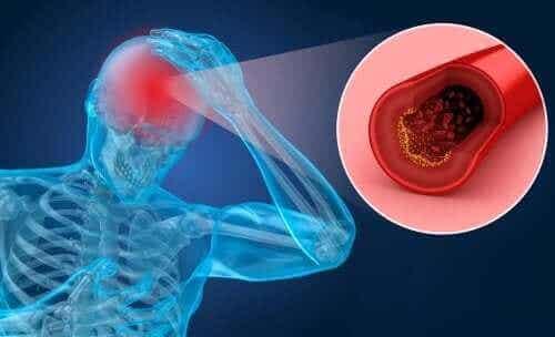 De risicofactoren en symptomen van een herseninfarct