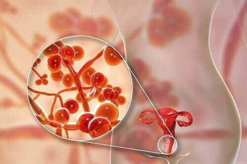 Mycoplasma genitalium: oorzaken, symptomen en behandeling