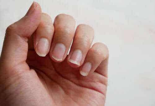 Vier natuurlijke ingrediënten voor breekbare nagels